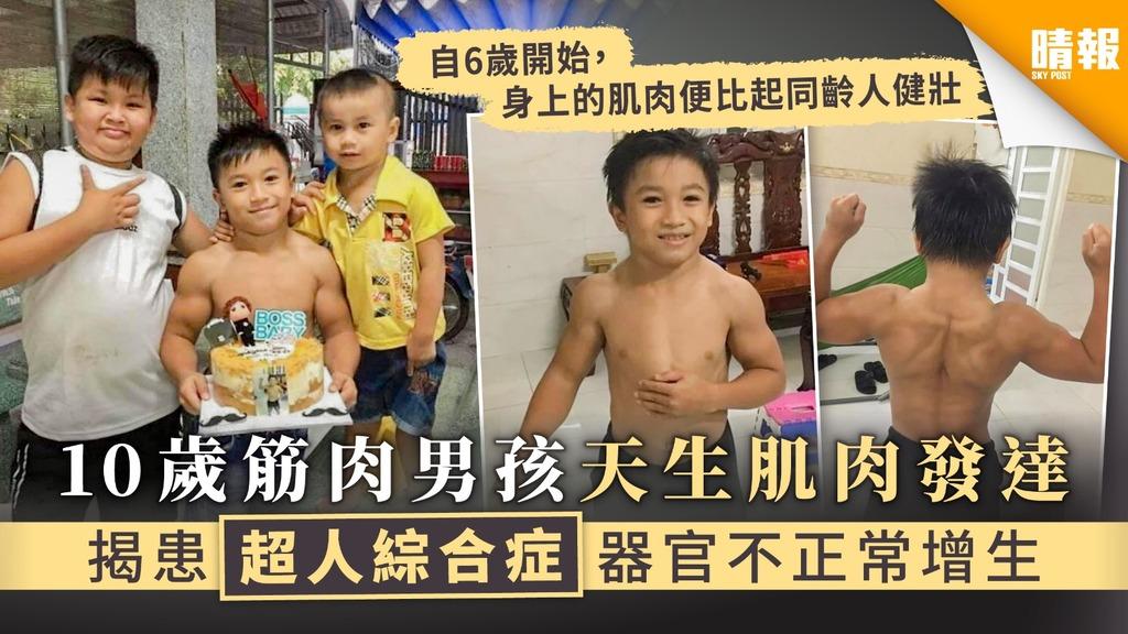 【小超人】10歲筋肉男孩天生肌肉發達 超人綜合症器官不正常增生
