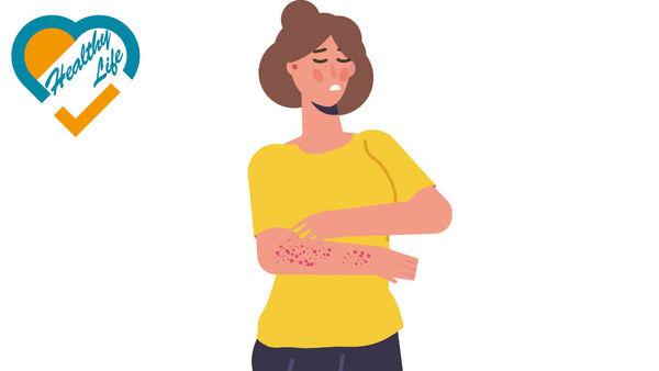 患濕疹要健脾 勿只着重去濕