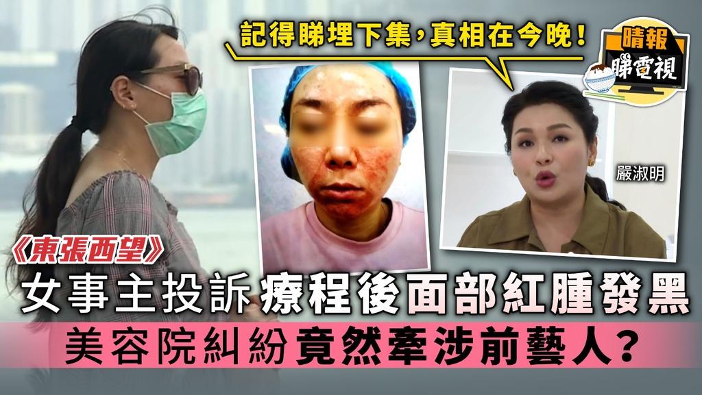 《東張西望》女事主投訴療程後面部紅腫發黑 美容院糾紛竟牽涉前藝人嚴淑明?