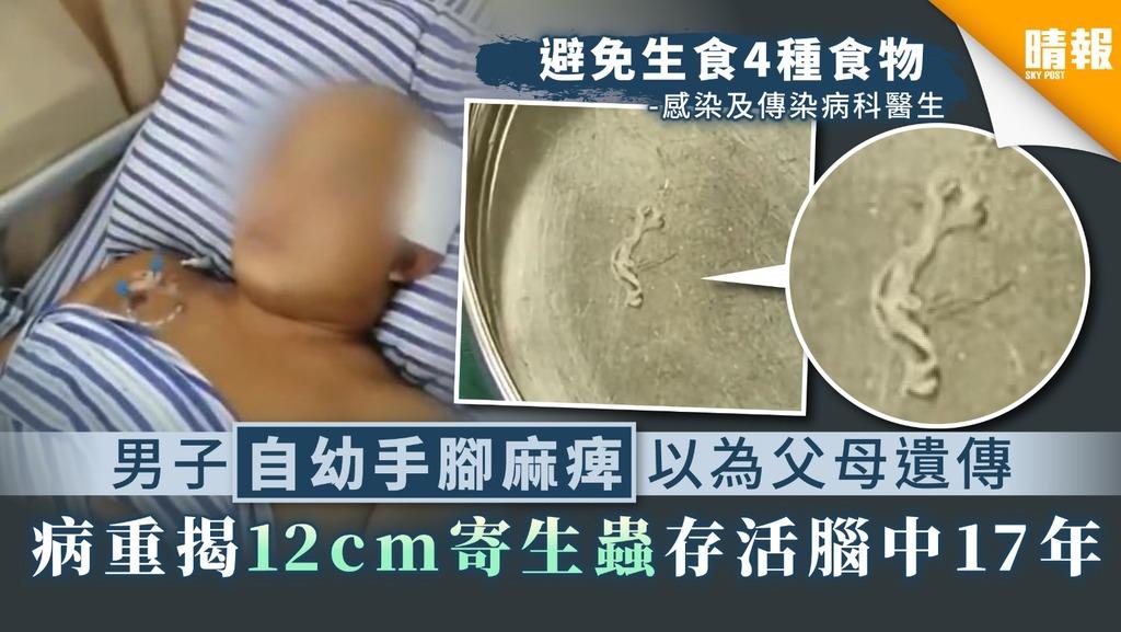 【食用安全】男子自幼手腳麻痺以為父母遺傳 病重揭12cm寄生蟲存活腦中17年
