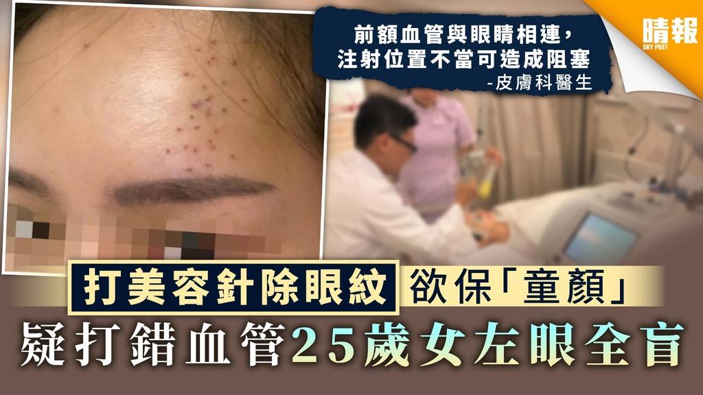 【美容意外】打美容針除眼紋欲保「童顏」 疑打錯血管25歲女左眼全盲