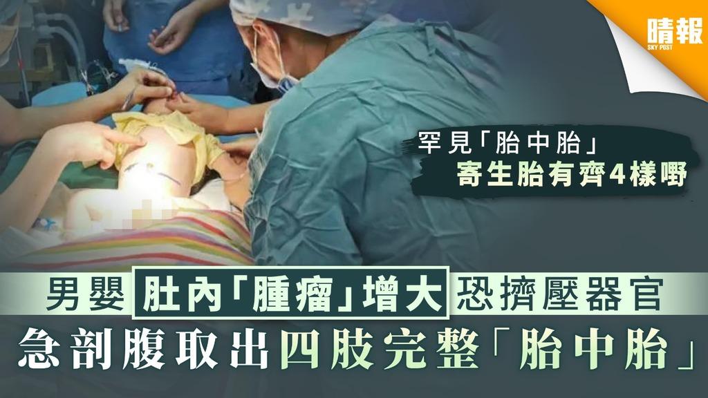 【寄生胎】男嬰肚內「腫瘤」增大恐擠壓器官 急剖腹取出四肢完整「胎中胎」