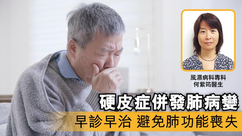 「硬皮症併發肺病變 早診早治 避免肺功能喪失」