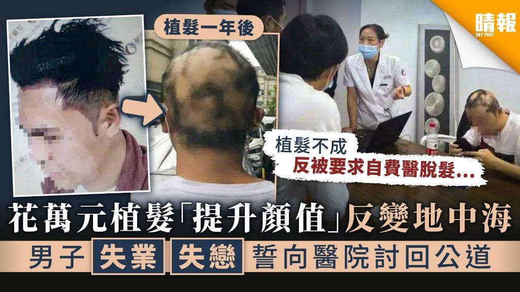 【植髮手術】花萬元植髮「提升顏值」反變地中海 男子失業失戀誓向醫院討回公道