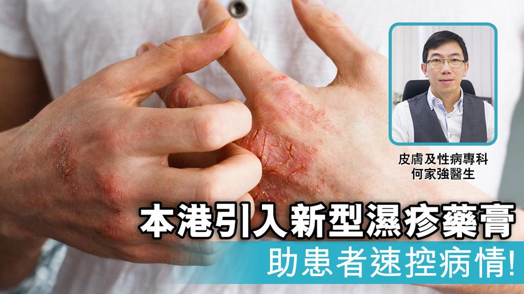 「本港引入新型濕疹藥膏 助患者速控病情!」