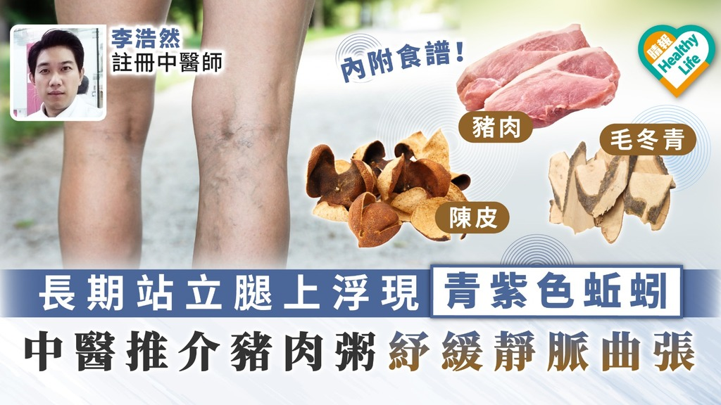 【都市病】長期站立腿上浮現青紫色蚯蚓 中醫推介豬肉粥紓緩靜脈曲張
