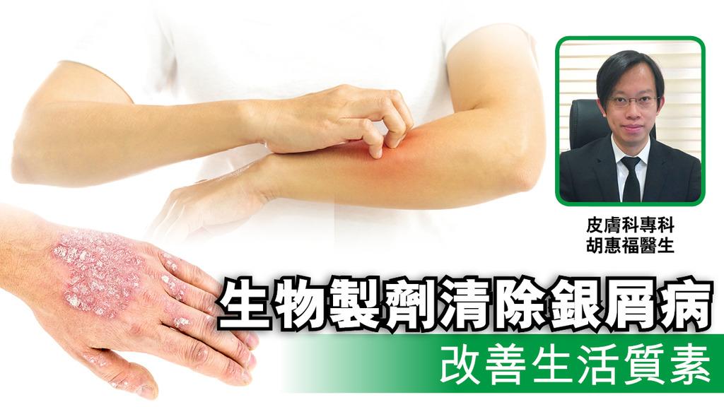 「生物製劑清除銀屑病 改善生活質素」