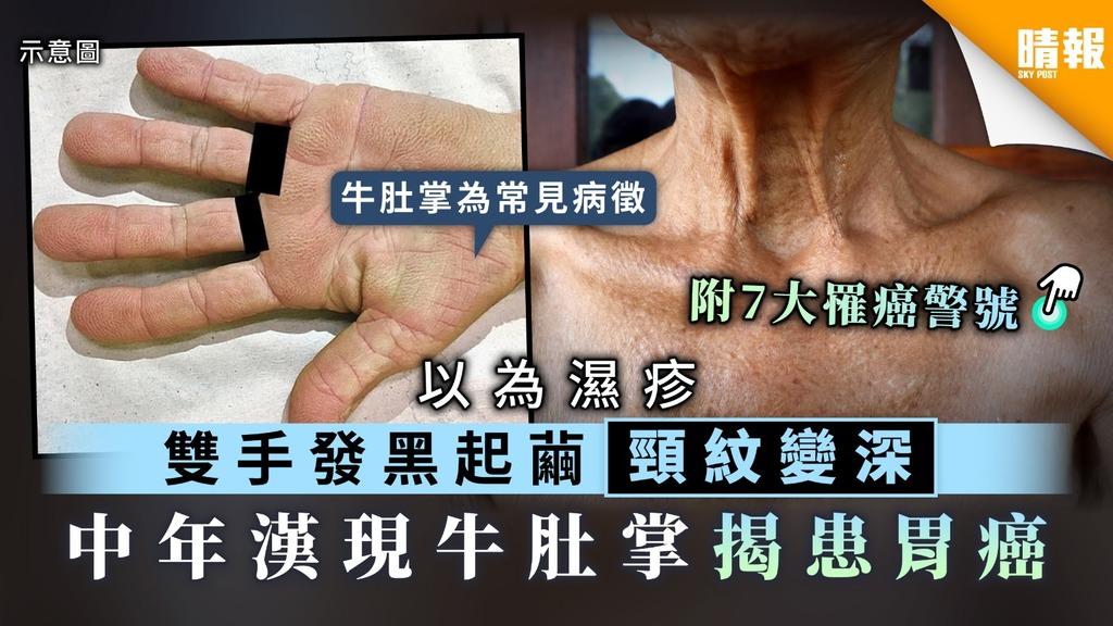 【第4大癌症殺手】雙手發黑起繭頸紋變深 中年漢現牛肚掌揭患胃癌【附7大罹癌警號】
