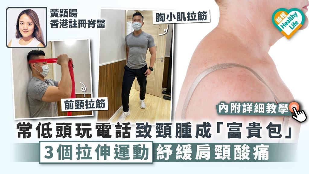 【頸痛腫脹】常低頭玩電話致頸腫成「富貴包」 3個拉伸運動紓緩肩頸酸痛