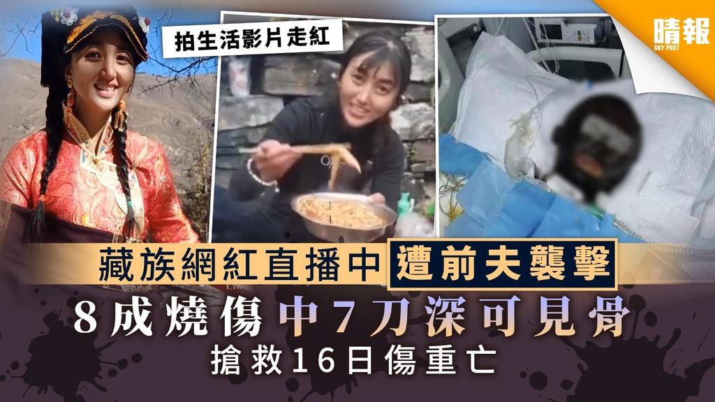 【躁夫殺妻】藏族網紅直播中遭前夫襲擊 全身8成燒傷中7刀深可見骨 搶救16日傷重亡