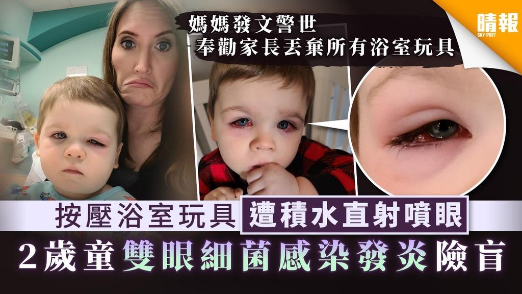 【沖涼玩具陷阱】按壓浴室玩具遭積水直射噴眼 2歲童雙眼細菌感染發炎險盲