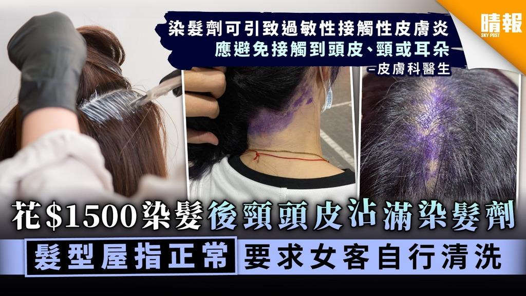 花$1500染髮後頸頭皮沾滿染髮劑 髮型屋指正常要求女客自行清洗