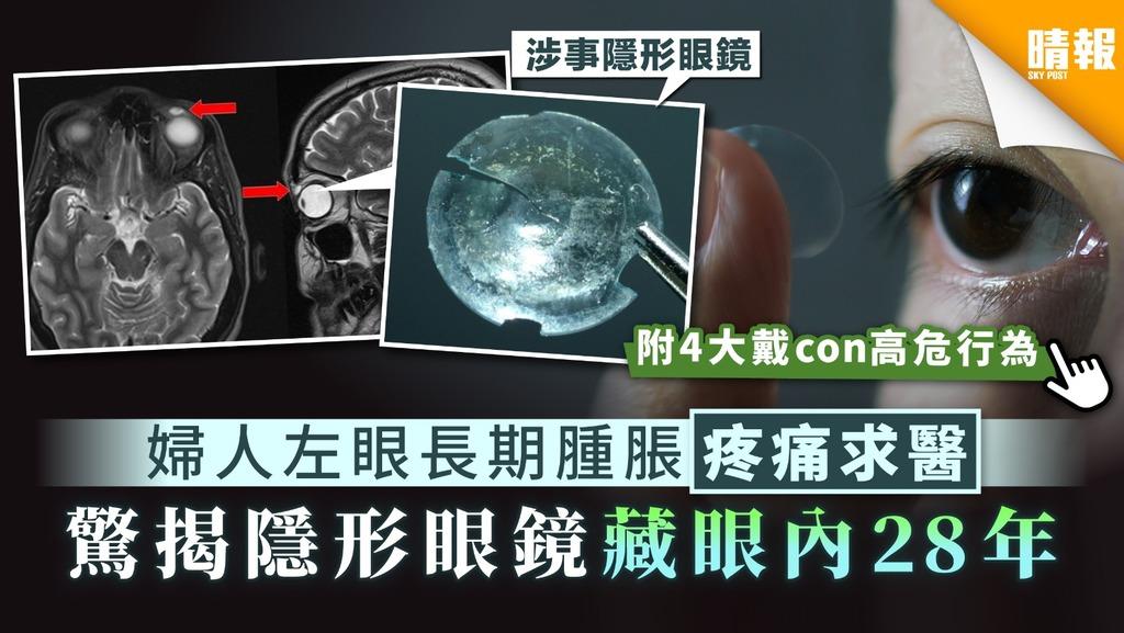 【戴con】婦人左眼長期腫脹疼痛求醫 驚揭隱形眼鏡藏眼內28年【附4大戴con高危行為】