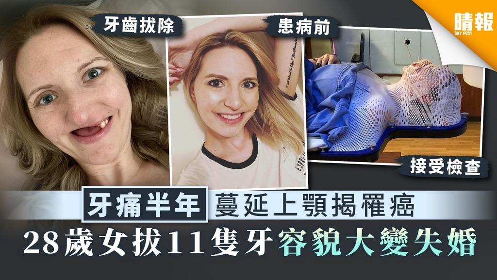 【唾液腺癌】牙痛半年蔓延上顎揭罹癌 28歲女拔11隻牙容貌大變失婚