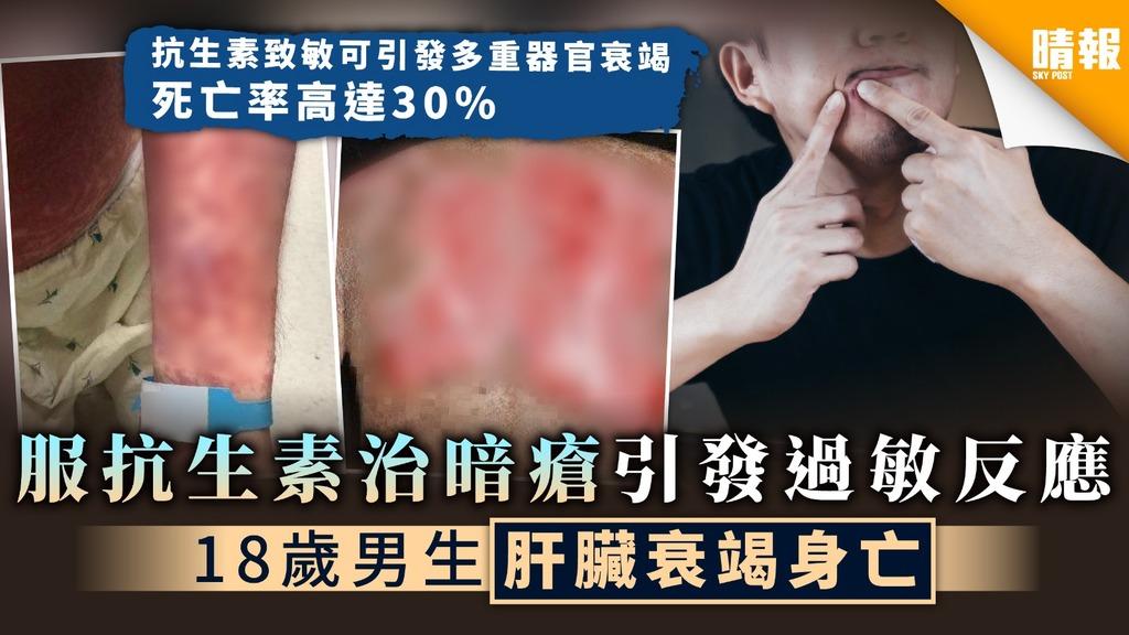 【藥物過敏】服抗生素治暗瘡引發過敏反應 18歲男生肝臟衰竭身亡