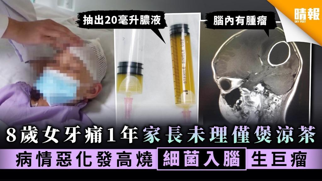 【諱疾忌醫】8歲女牙痛1年嫲嫲僅煲涼茶下火 惡化發高燒揭細菌入腦生巨瘤