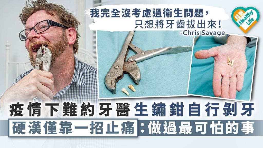 【膽識過人】疫情下難約牙醫生鏽鉗自行剝牙 硬漢僅靠一招止痛:做過最可怕的事