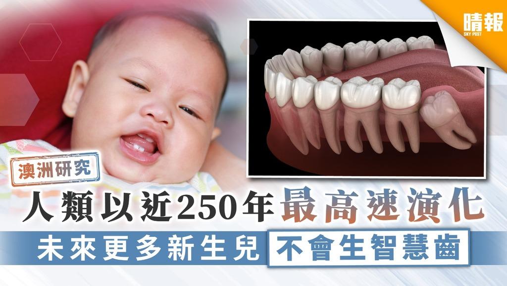 【澳洲研究】人類以近250年最高速演化 未來更多新生兒不會生智慧齒