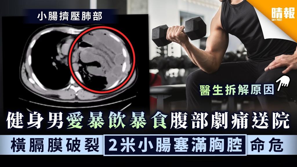 【生活習慣】健身男愛暴飲暴食腹部劇痛送院 橫膈膜破裂2米小腸塞滿胸腔命危
