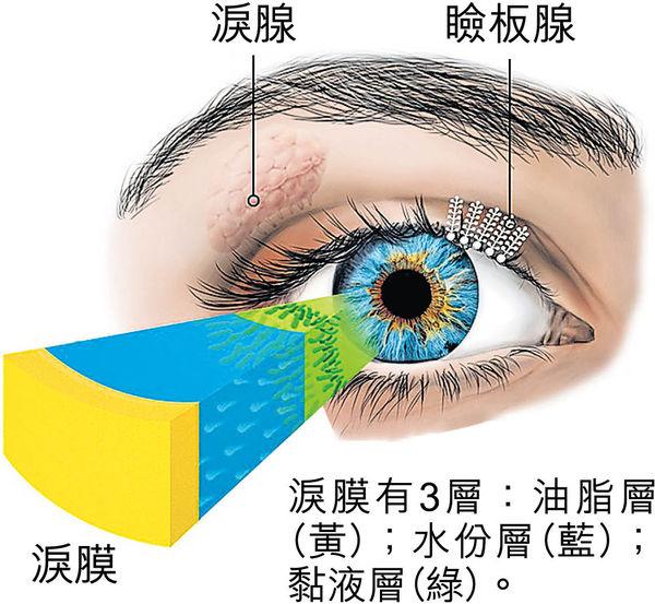眼乾症的高危因素