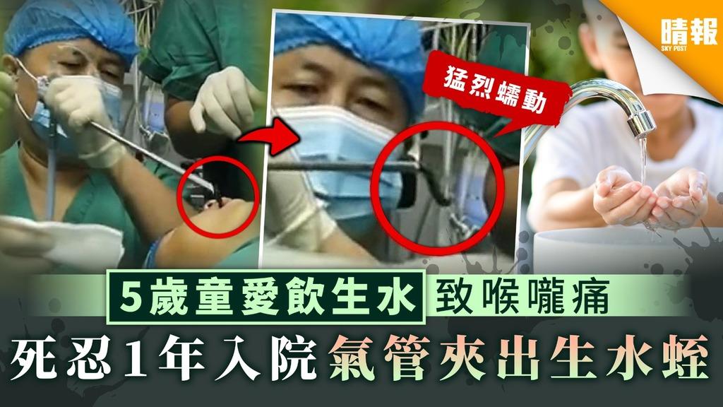 【病從口入】5歲童愛飲生水致喉嚨痛 死忍1年入院氣管夾出生水蛭