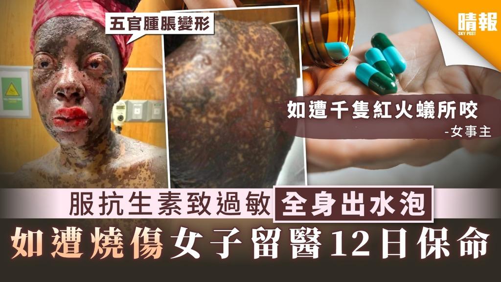 【藥物過敏】服抗生素致過敏全身出水泡 女子如遭燒傷留醫12日保命