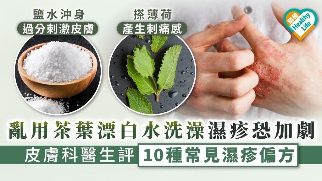 【濕疹偏方】亂用茶葉漂白水洗澡濕疹恐加劇 皮膚科醫生評10種常見濕疹偏方