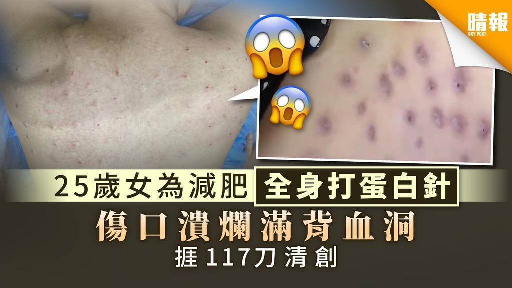 【減肥陷阱】25歲女為瘦身全身打蛋白針 傷口潰爛滿背血洞捱117刀清創