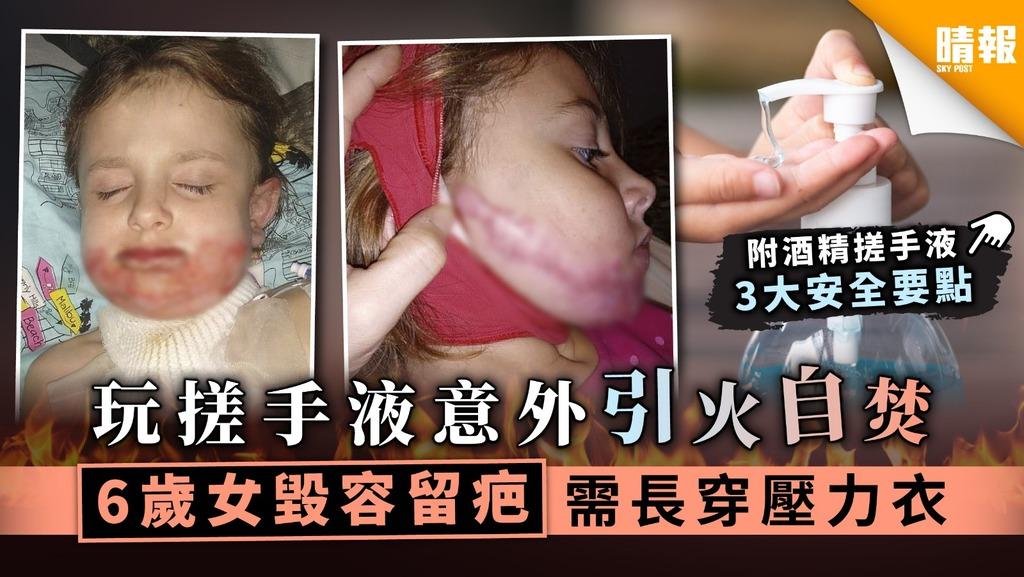【家居安全】玩搓手液意外引火自焚 6歲女毀容留疤需長穿壓力衣【附3大安全要點】