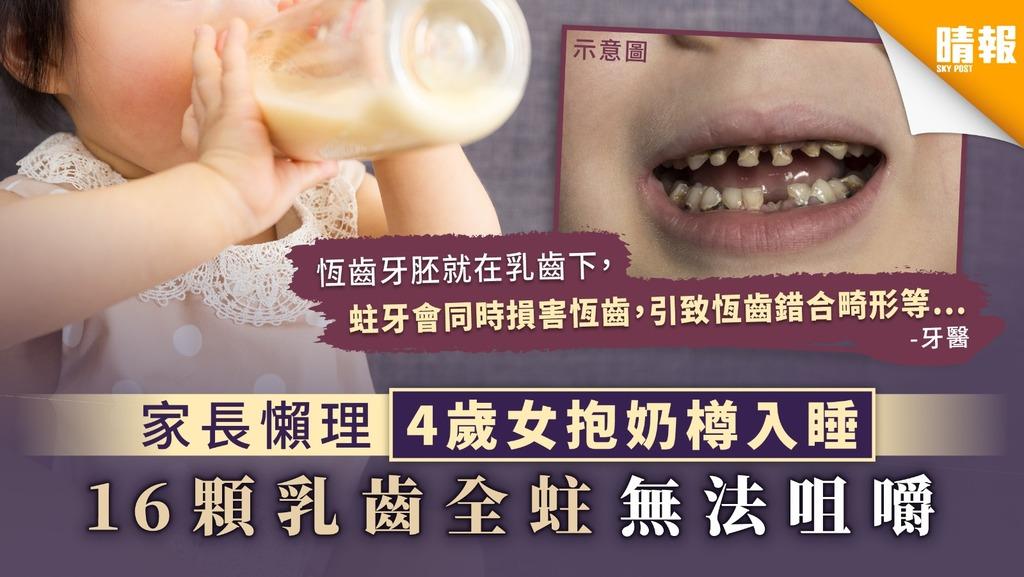 【兒童蛀牙】家長懶理4歲女抱奶樽入睡 16顆乳齒全蛀無法咀嚼