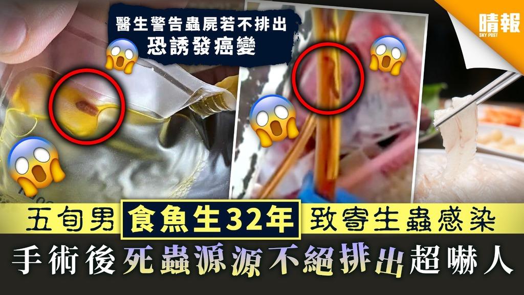 【食用安全】五旬男食魚生32年致寄生蟲感染 手術後死蟲源源不絕排出超嚇人