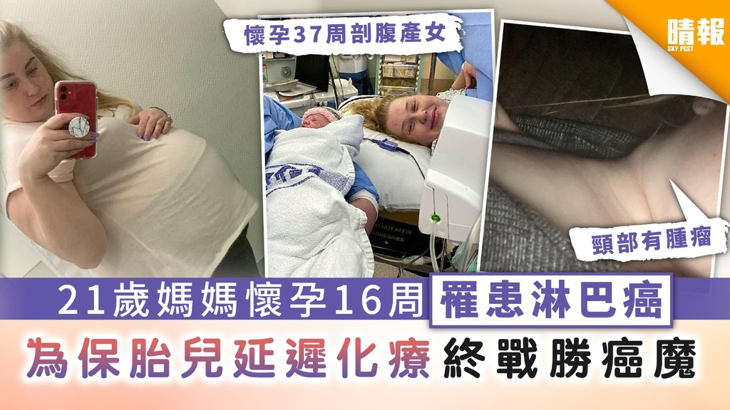 【母愛偉大】21歲媽媽懷孕16周罹患淋巴癌 為保胎兒延遲化療終戰勝癌魔