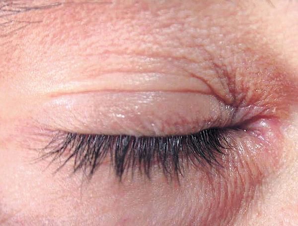 小心濕疹影響眼睛