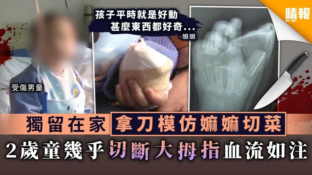 【家長注意】獨留在家拿刀模仿嫲嫲切菜 2歲童幾乎切斷大拇指血流如注