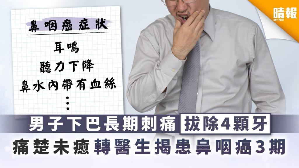 【鼻咽癌】男子下巴長期刺痛拔除4顆牙 痛楚未癒轉醫生揭患鼻咽癌3期