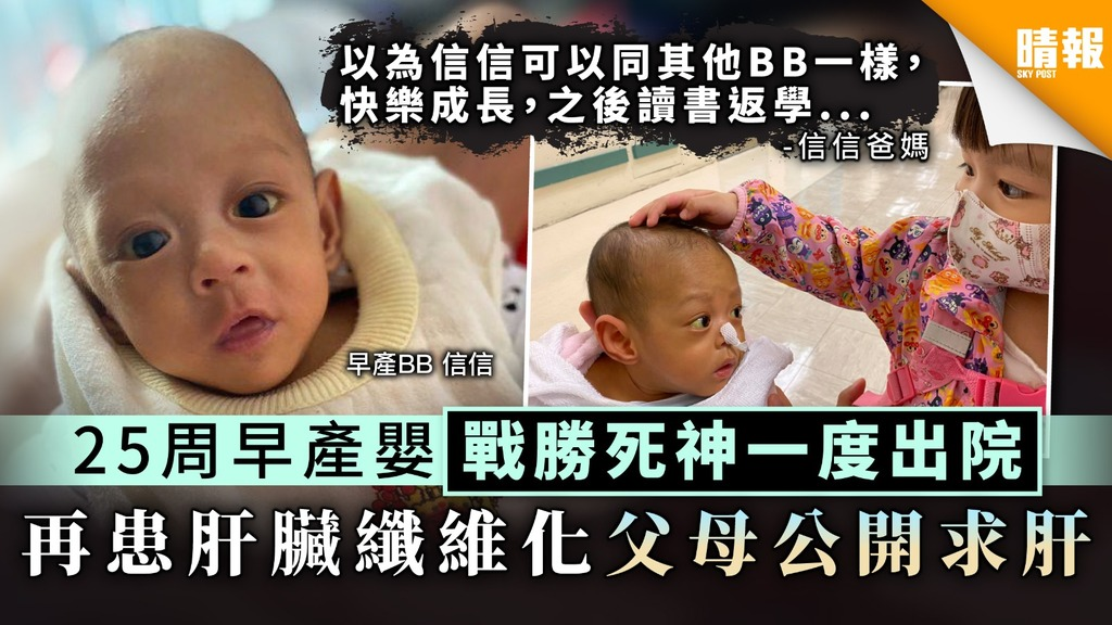 【生命鬥士】25周早產嬰戰勝死神一度出院 再患肝臟纖維化父母公開求肝