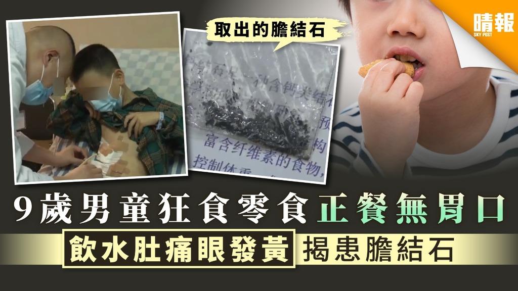 【食無定時】9歲男童狂食零食正餐無胃口 飲水肚痛眼發黃揭患膽結石