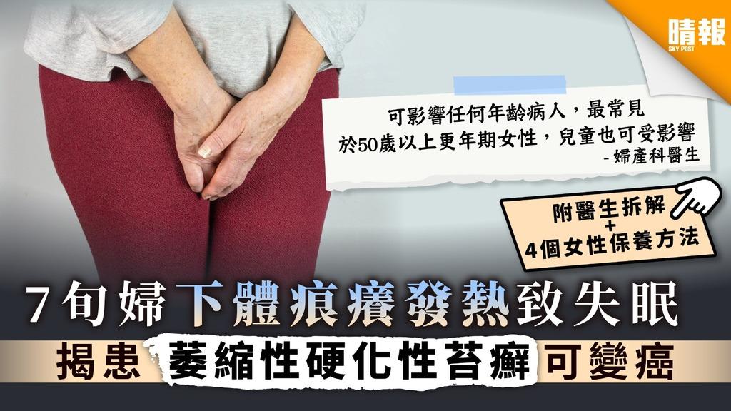 【女性疾病】7旬婦下體痕癢發熱致失眠 揭患萎縮性硬化性苔癬可變癌【附醫生拆解 + 4個女性保養方法】