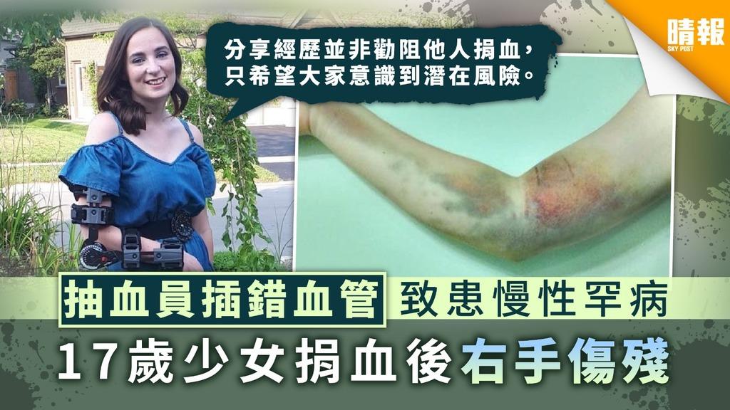 【捐血意外】抽血員插錯血管致患慢性罕病 17歲少女捐血後右手傷殘