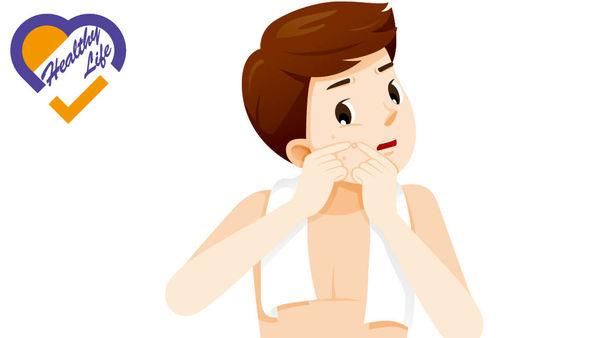 生粉瘤亂擠壓 恐變蜂窩組織炎