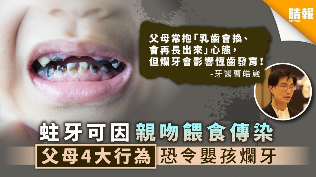 【兒童護齒】蛀牙可因親吻餵食傳染 父母4大行為恐令嬰孩爛牙