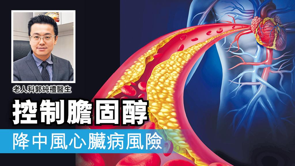 「控制膽固醇 降中風心臟病風險」