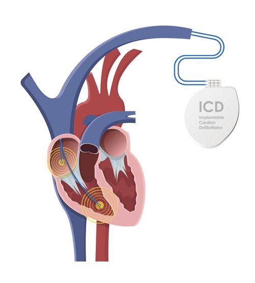 「預防心臟猝死! 遺傳性心律病患者 最關心的10個問題」