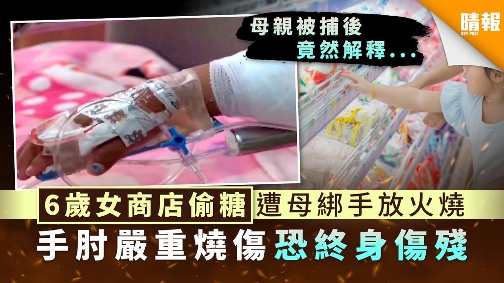 過度懲罰|6歲女商店偷糖遭母綁手放火燒 手肘嚴重燒傷恐終身傷殘