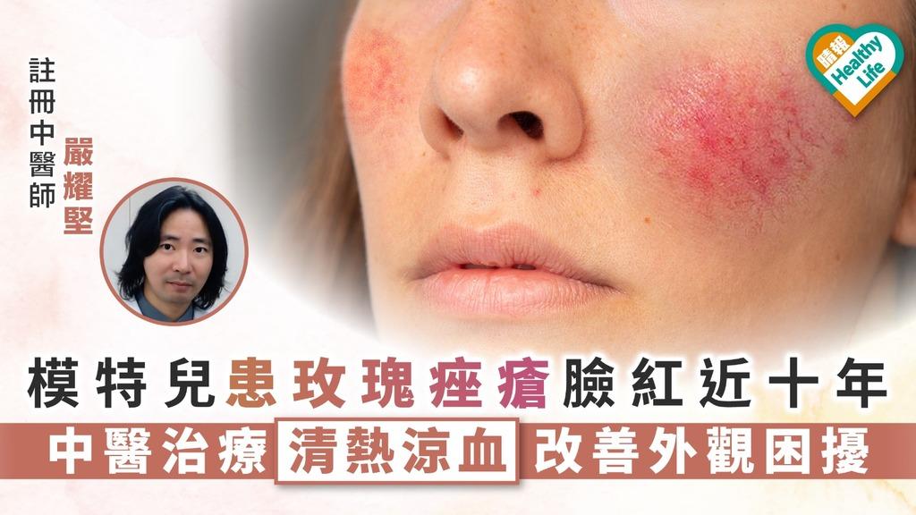 模特兒患玫瑰痤瘡臉紅近十年 中醫清熱涼血治療改善外觀困擾