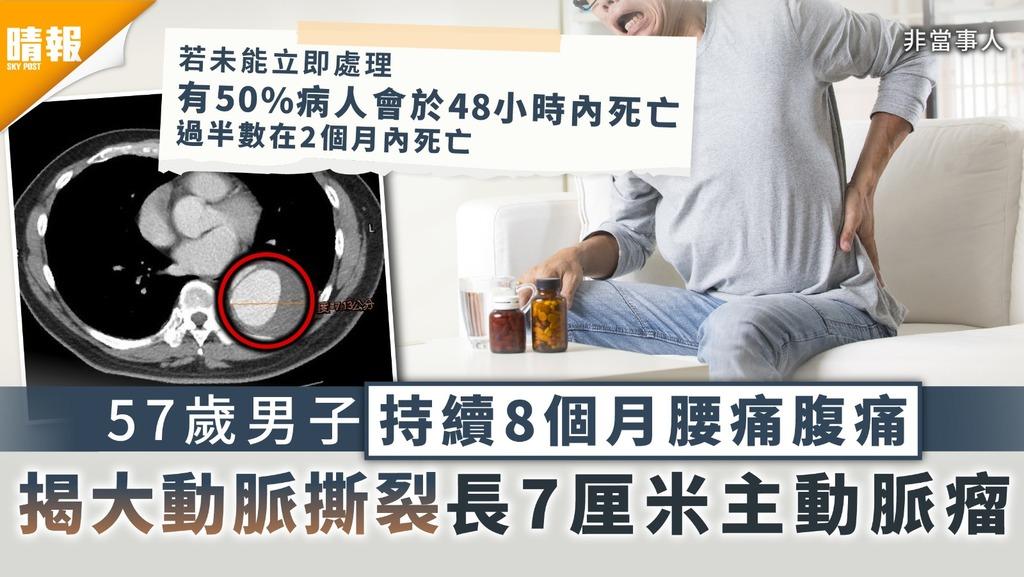 主動脈剝離|57歲男子持續8個月腰痛腹痛 揭大動脈撕裂長7厘米主動脈瘤