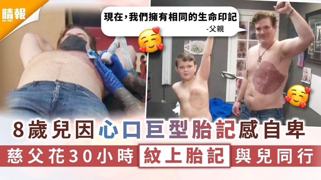 廿四孝父親|8歲兒因心口巨型胎記感自卑 慈父花30小時紋上胎記與兒同行