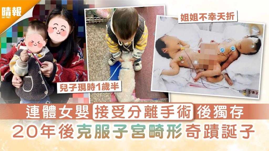 生命奇蹟|連體女嬰接受分離手術後獨存 20年後克服子宮畸形奇蹟誕子