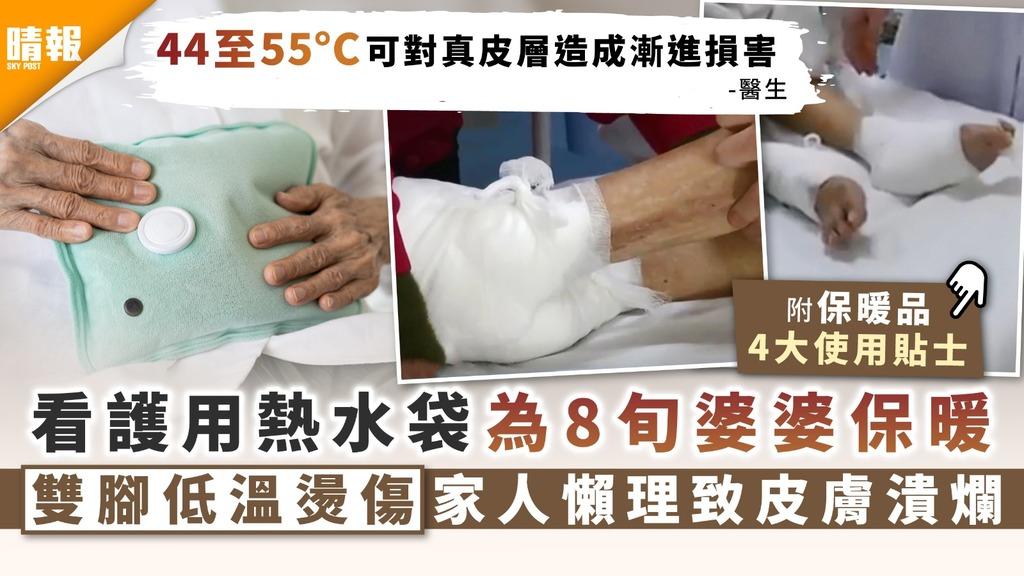 冬日保暖|看護用熱水袋為8旬婆婆保暖 雙腳低溫燙傷家人懶理致皮膚潰爛