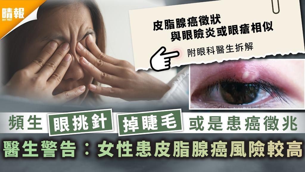 患癌風險︳頻生眼挑針掉睫毛或是患癌徵兆 醫生警告︰女性患皮脂腺癌風險較高